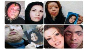 acid attacks on women in Iran