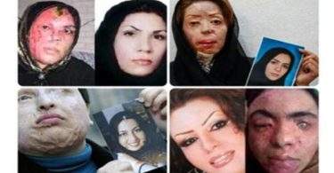 acid attacks on women in Iran